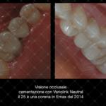Inlay-in-composito-con-sistematica-CAD-CAM-by-Dr-Claudio-De-Vito